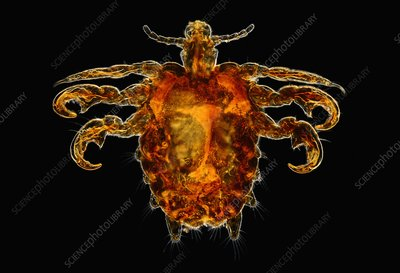 The Crab Louse or Pubic Louse
