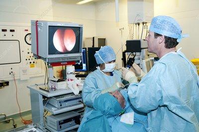 C0087900-Nasal_polyp_surgery-SPL.jpg