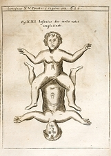 1662 Schott conjoined infants