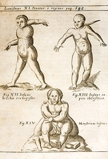 1662 Schott birth defects, teratology