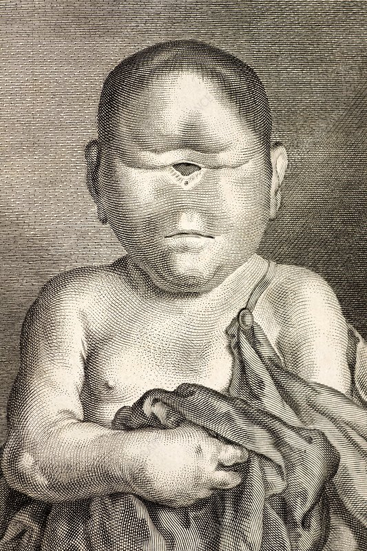 Cyclopia In Humans
