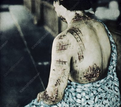 Radiation burns, Hiroshima, 1945