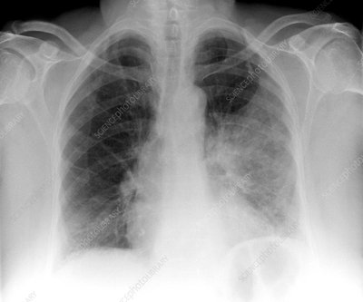 Pulmonary consolidation, X-ray