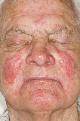 Allergic skin reaction to a drug