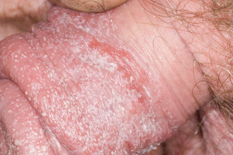 Was Anal fungal infections symptoms
