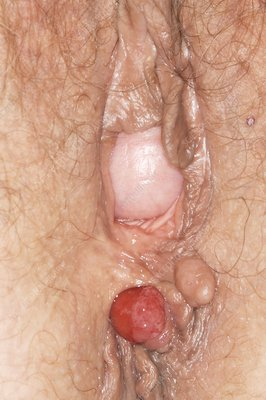 Haemorrhoids and vaginal prolapse