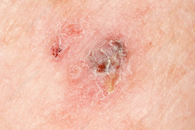 Melanoma Skin Cancer On The Arm Stock Image C009 0096 Science Photo Library