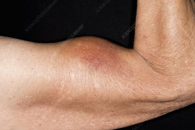 Torn biceps muscle in the arm