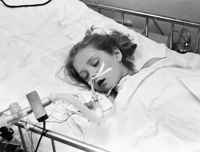 Chernobyl disaster victim, Belarus - Stock Image - C009 ...