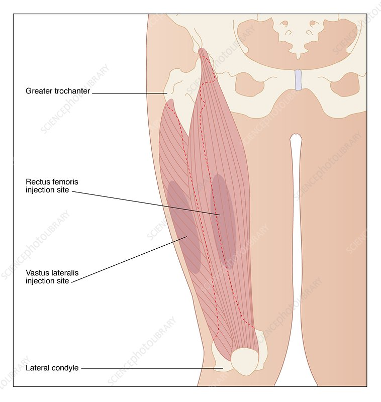 Buttock Injection Site: Vastus Lateralis Injection Site, Artwork