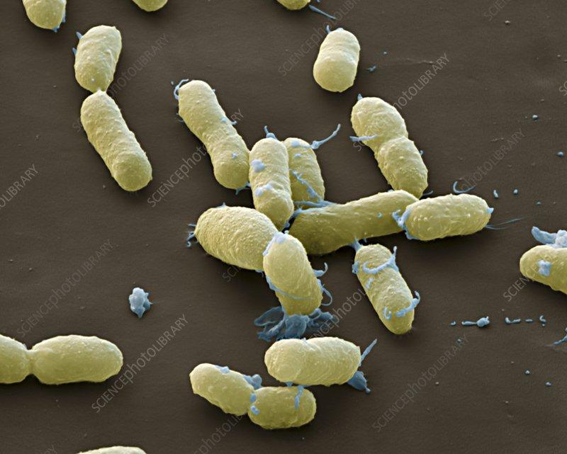 Plague bacteria yersinia pestis sem