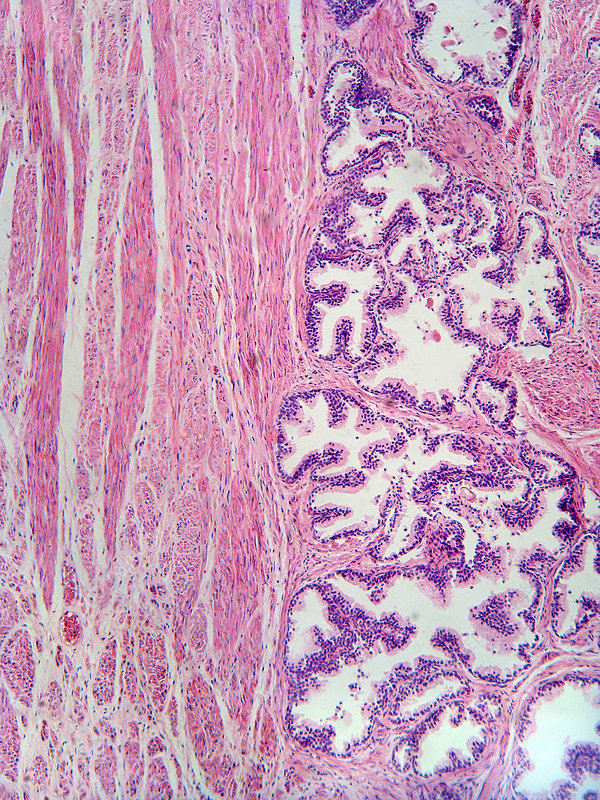 Human Prostate Tissue (LM)