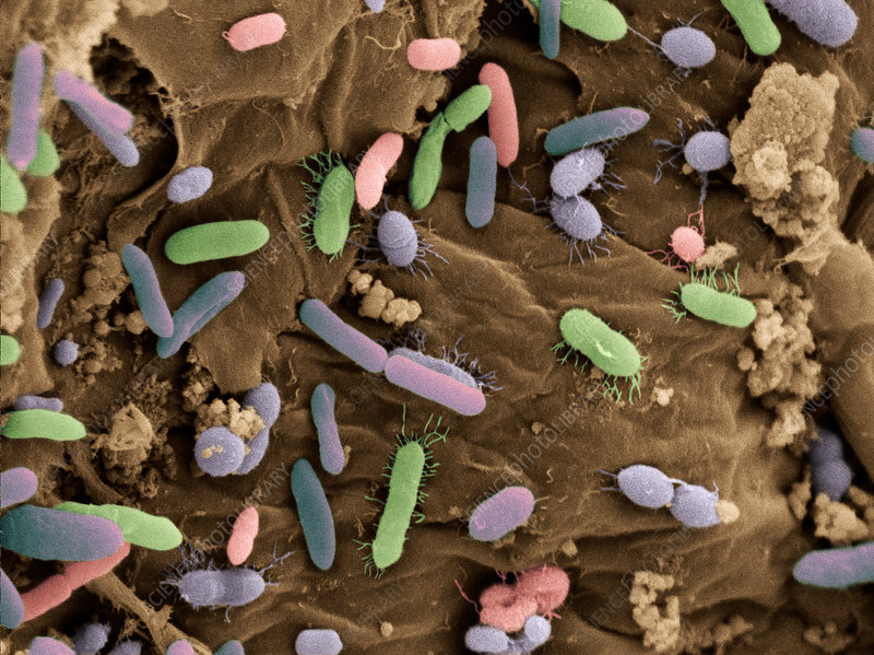 Bacteria in Dog Feces, SEM