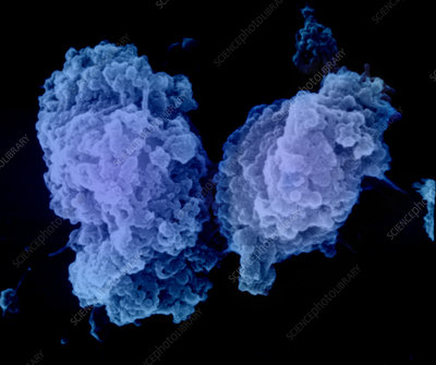Apoptosis of a Lymphocyte