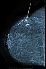 Stereotactic Biopsy of Breast