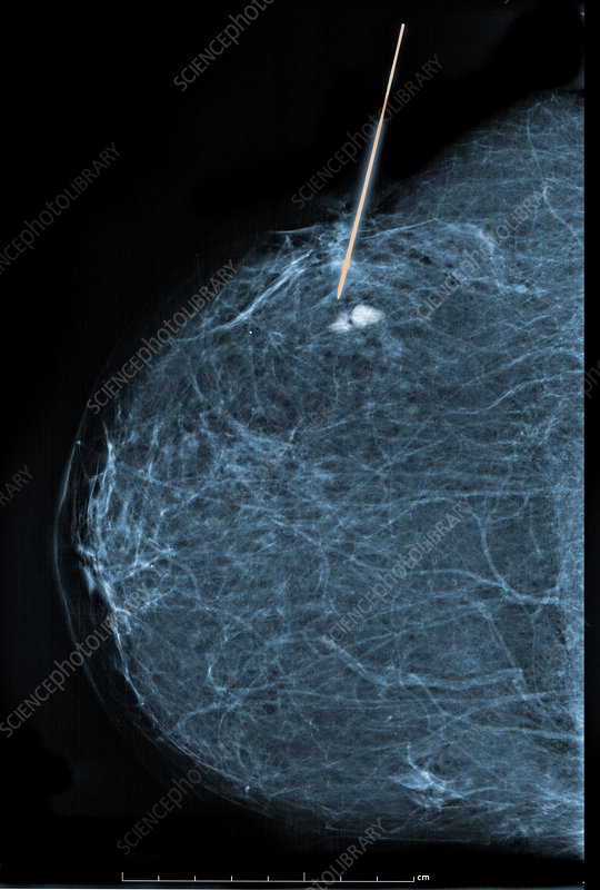 For microcalcifications biopsy breast