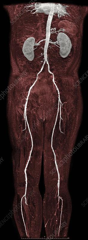 Femoral Artery Stenosis, MRA
