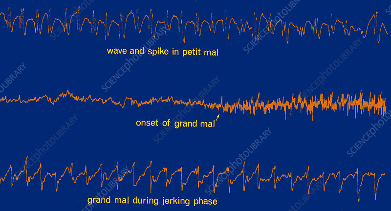 EEG of Epileptic Seizures