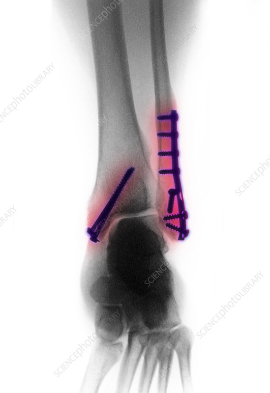 Fractured Ankle With Screws and Plates