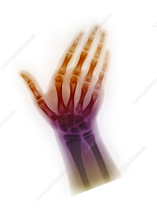 Healthy Hand of 8 Year Old