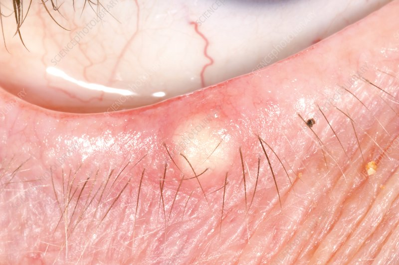 Chalazion in the lower eyelid