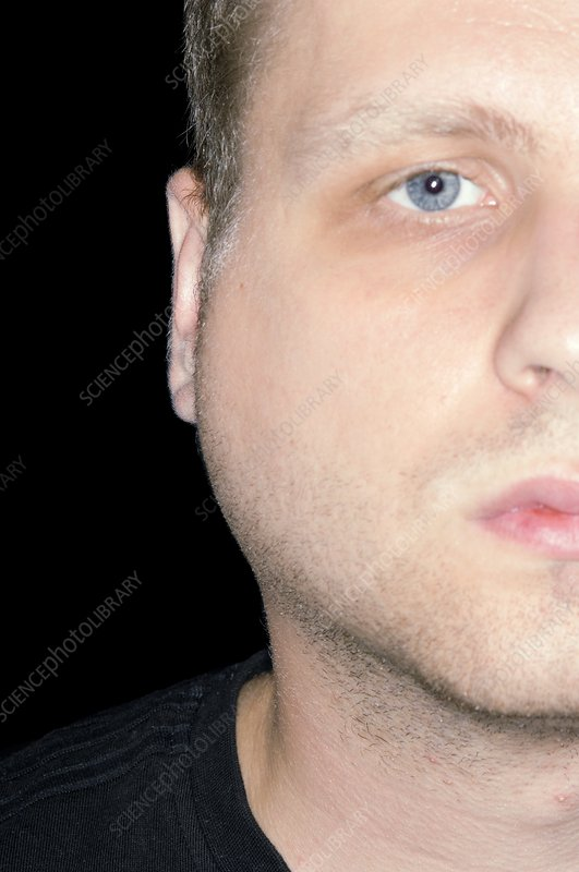 Swollen gland in mumps