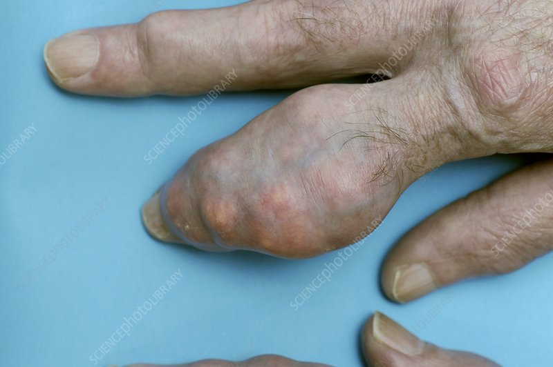 Swollen finger with gout