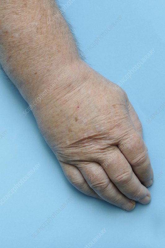 Hand swollen with gout