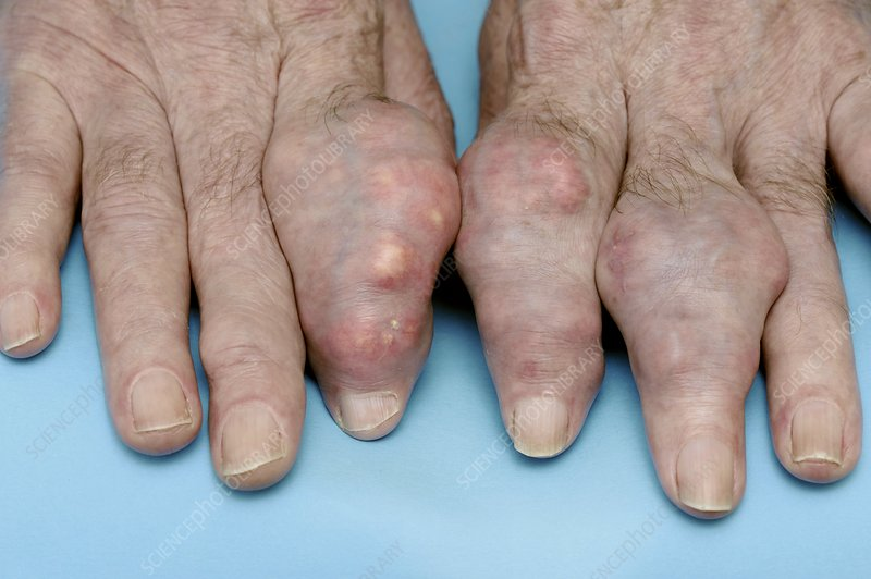 Fingers swollen with gout