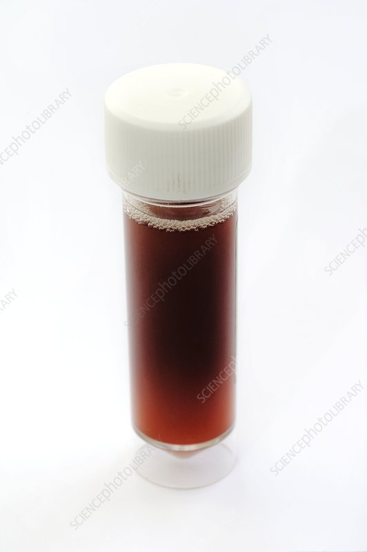 Urine sample with blood