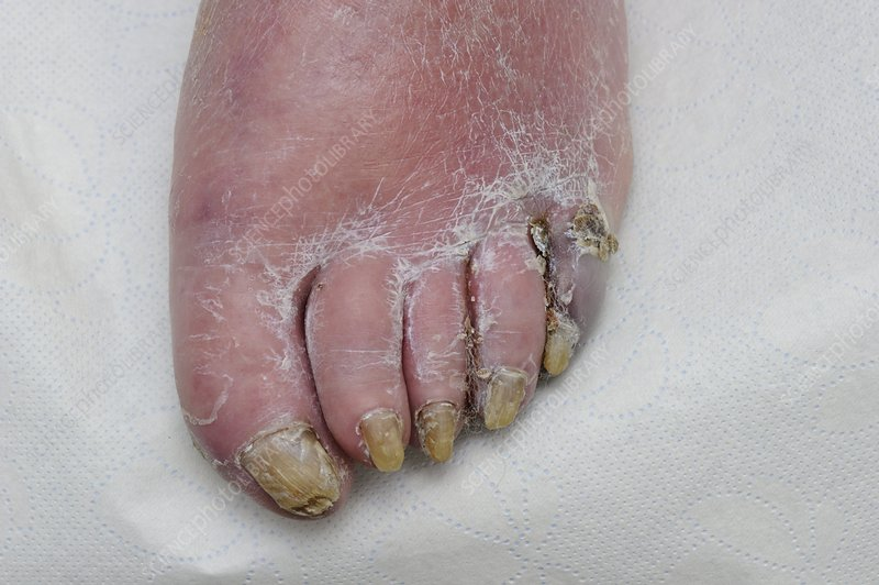 Ischaemic toes with infection