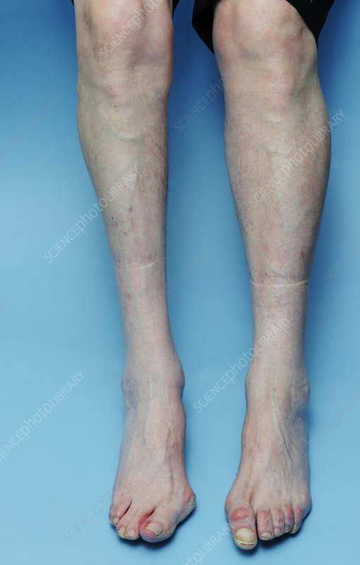 Poliomyelitis of the leg