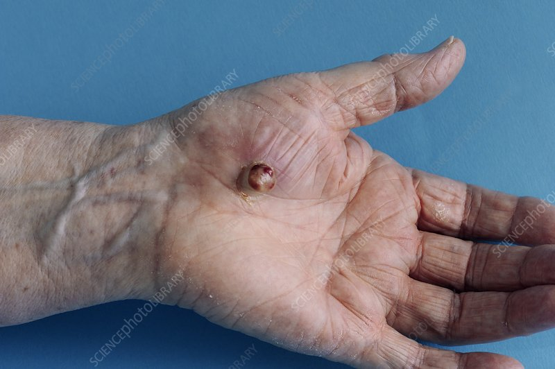 Pyogenic granuloma on the hand