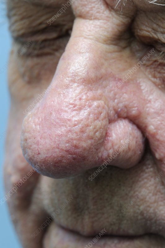 Rhinophyma Of The Nose Stock Image C009 5326 Science Photo Library