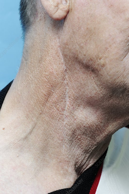 Carotid endarterectomy scar in neck