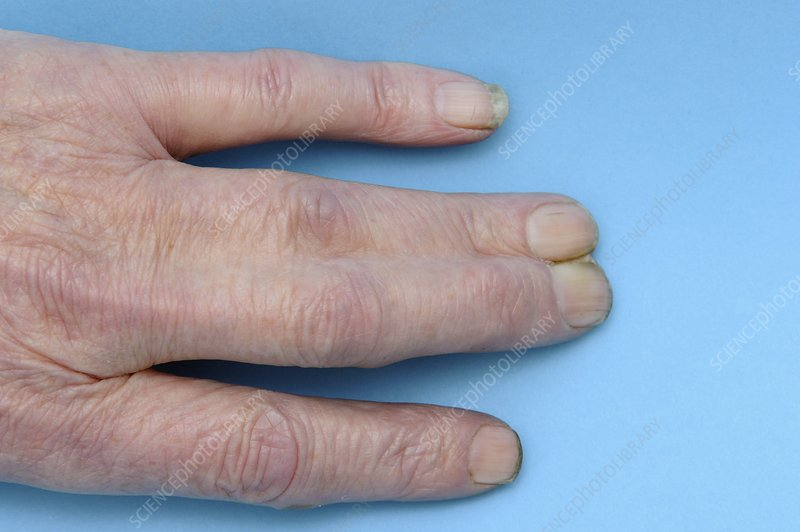 Syndactyly of the fingers