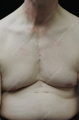 Enlarged thymus in adults
