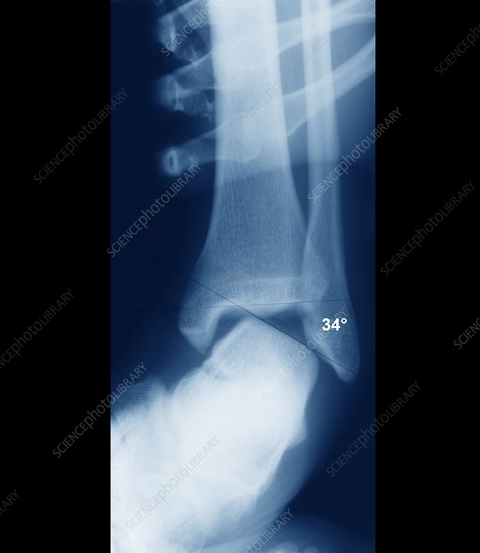Sprained ankle, X-ray