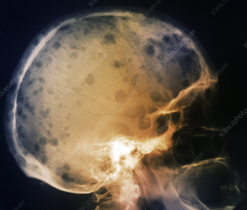 Skull in bone marrow cancer, X-ray