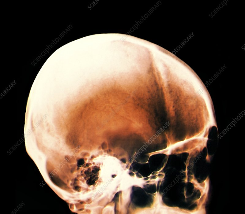Skull in Apert-Crouzon syndrome, X-ray