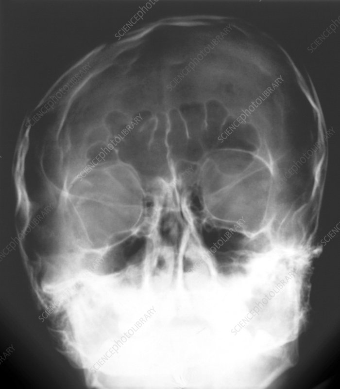 Facial injury to the skull, X-ray
