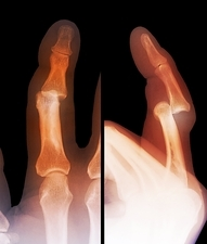 Dislocated finger joint, X-ray