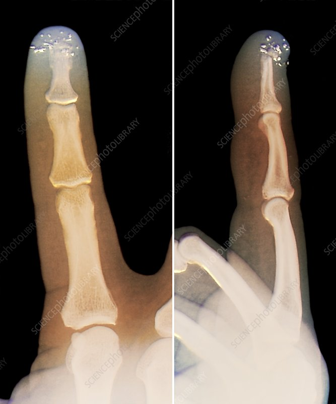 Metal filings in the finger, X-ray