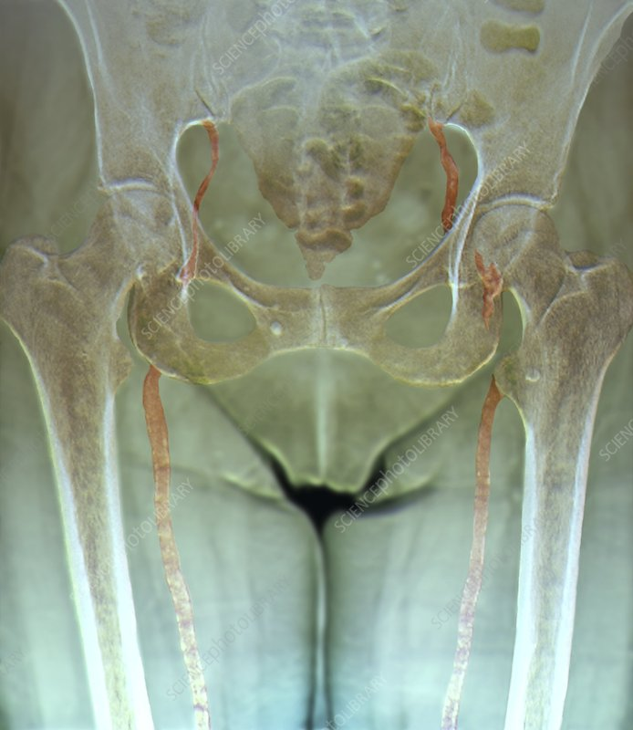 Atherosclerosis in femoral arteries X-ray