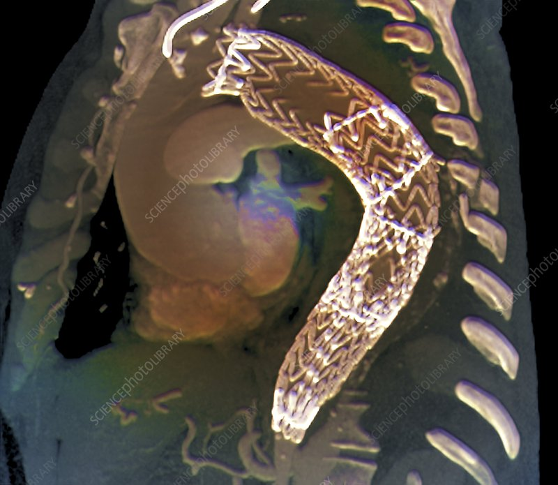 Stent to treat aortic aneurysm, CT scan