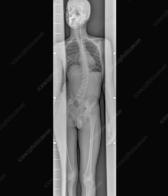 Scoliosis of the spine, whole body X-ray