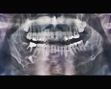Jaw cancer (ameloblastoma), X-ray