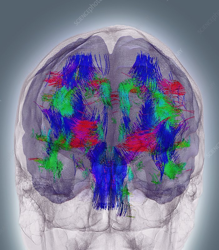 Brain white matter, 3D MRI scan