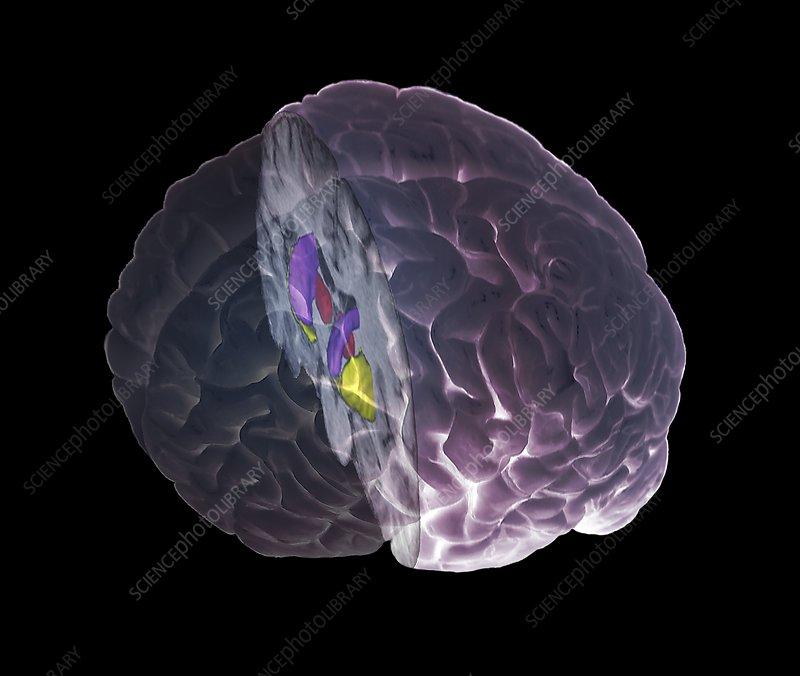 brain mri scan 3d - photo #23