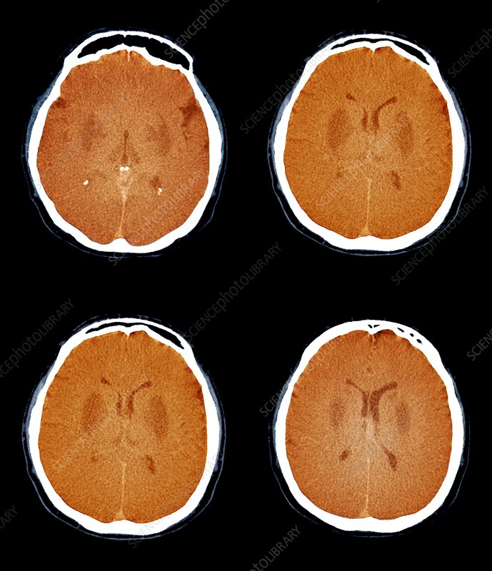 Brain in a coma, CT scan